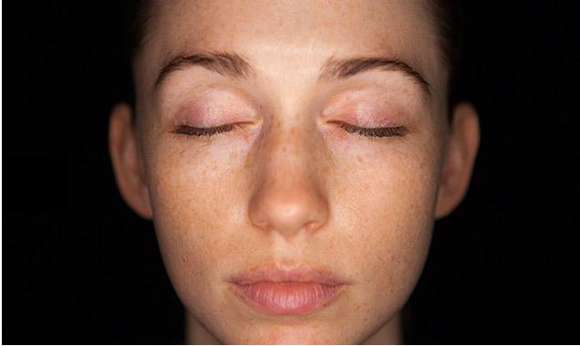 skincscope skin analysis before skin cosmetics