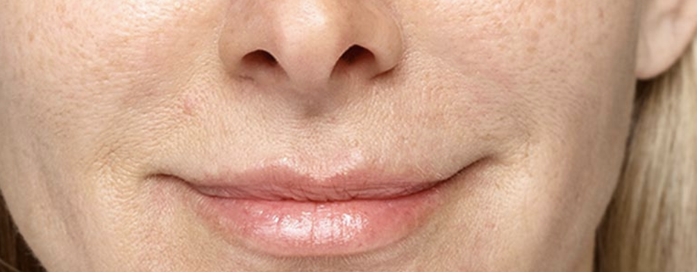 lip filler juvaderm restylane skin cosmetics london