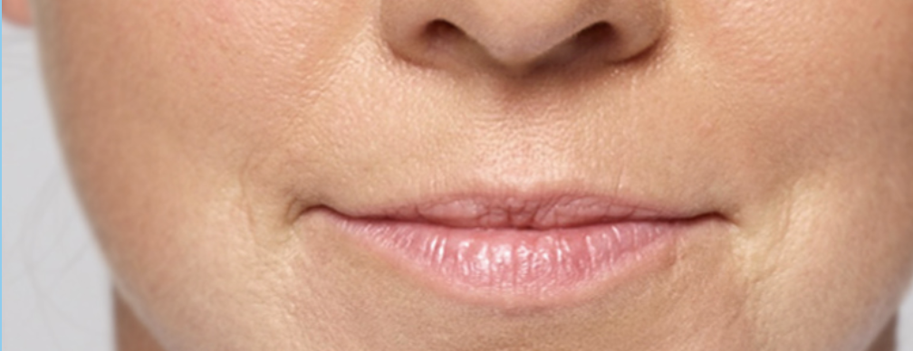 lip fillers juvaderm restylane skin cosmetics london