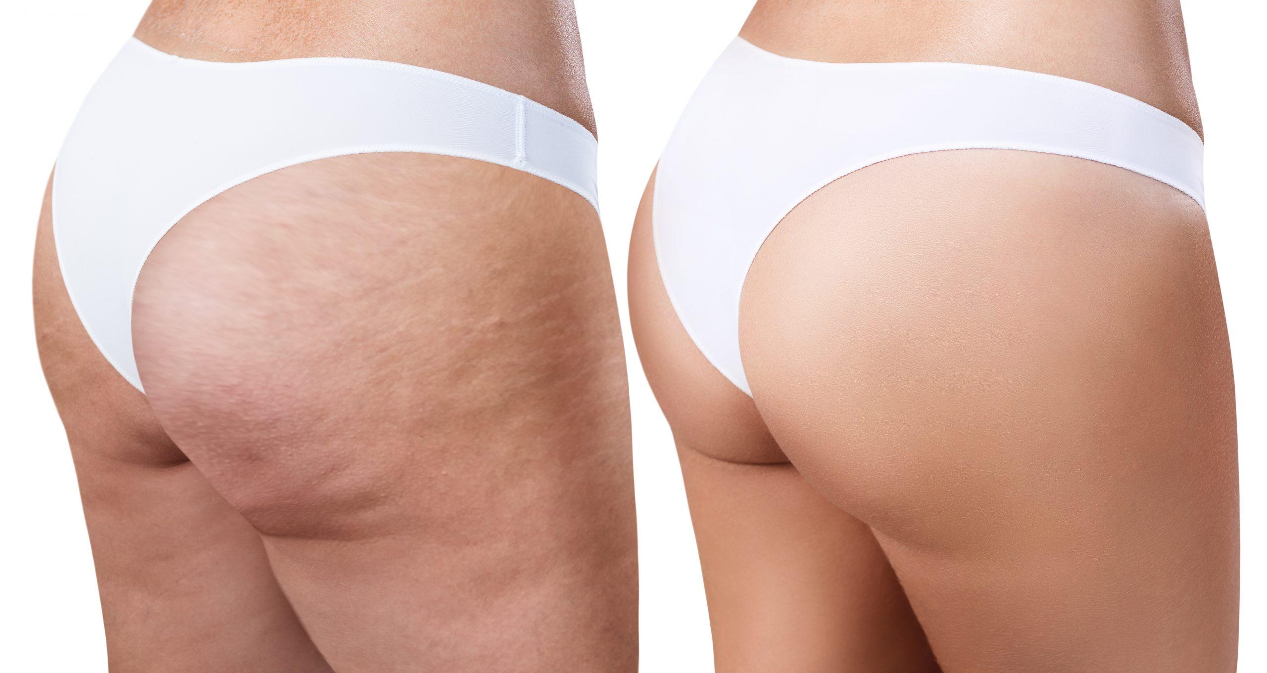 cellulite treatment removal skin cosmetics london