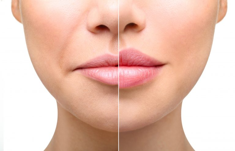 lip dermal filler before after skin cosmetics london