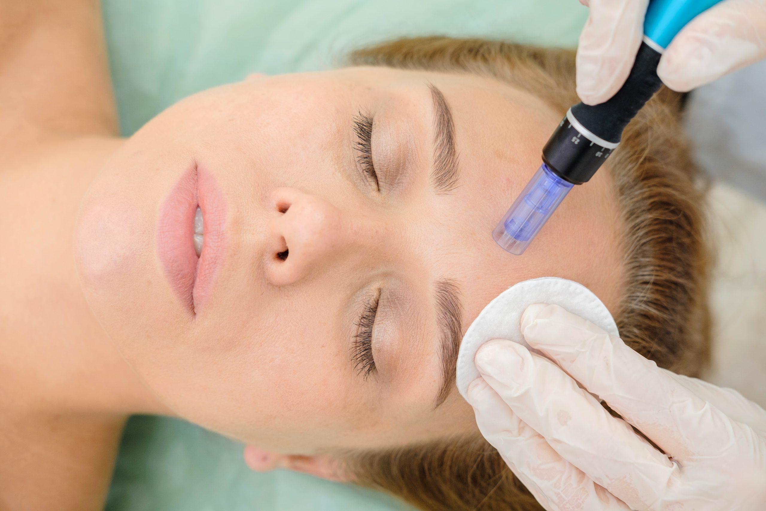 mesotherapy skin cosmetics london