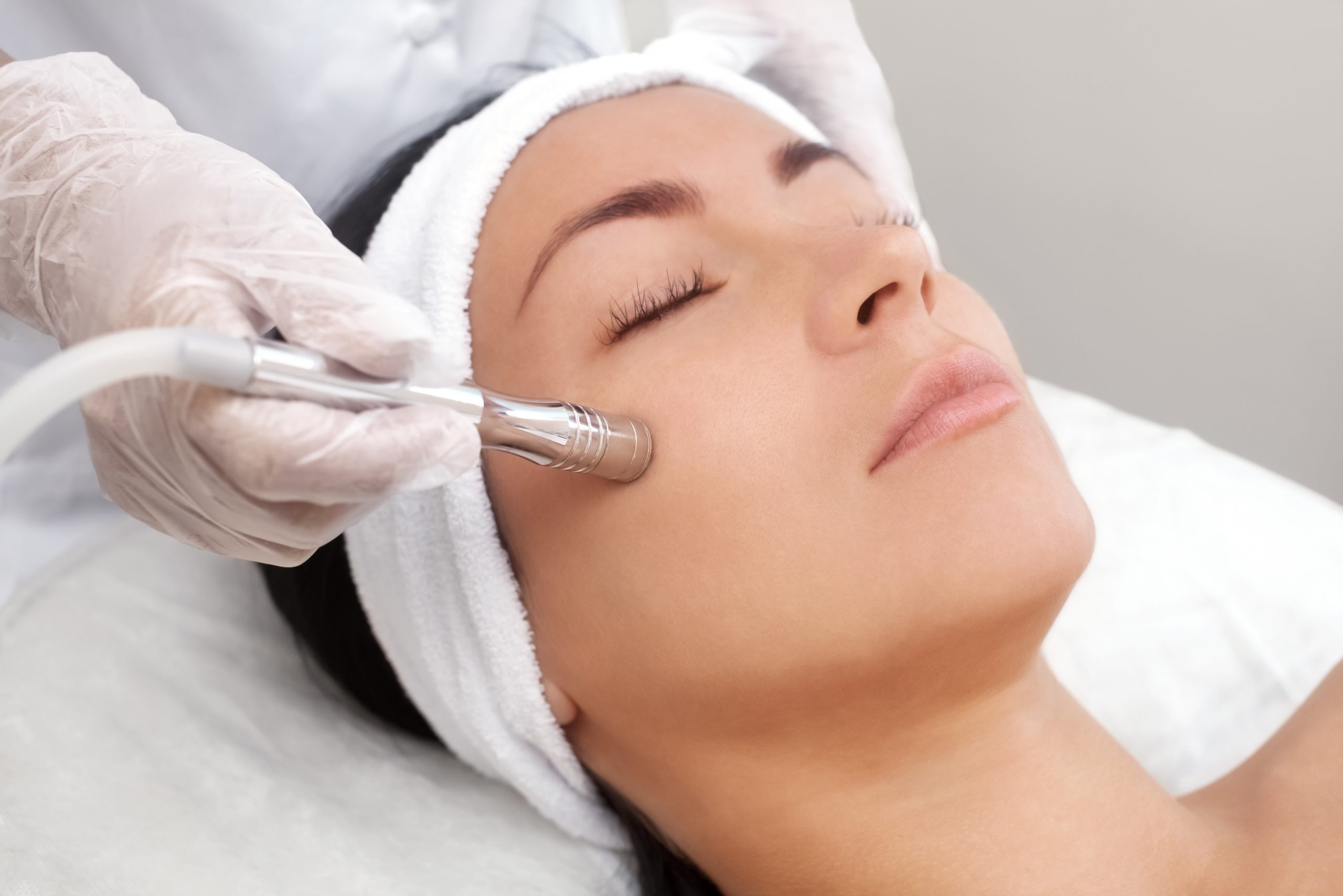 microdermabrasion skin cosmetics london