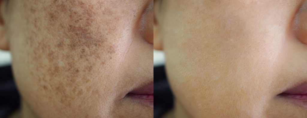 pigmentation laser treatment before & after