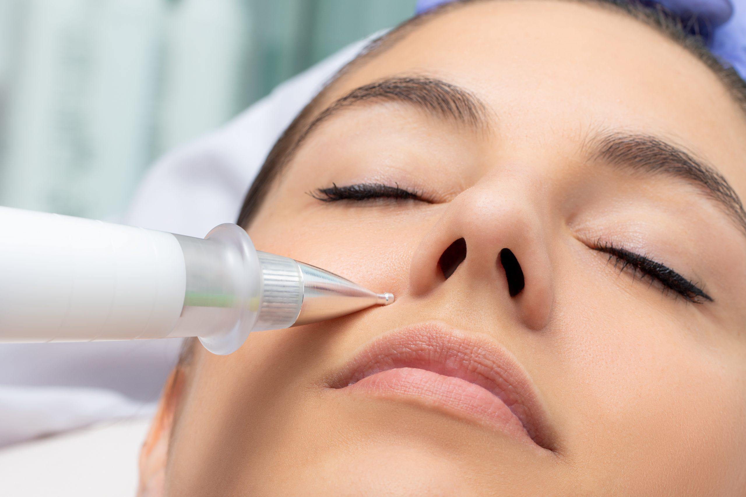 plasmapen plasma pen skin cosmetics london
