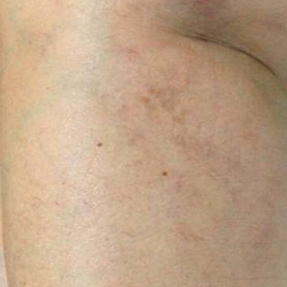 thread vein laser after