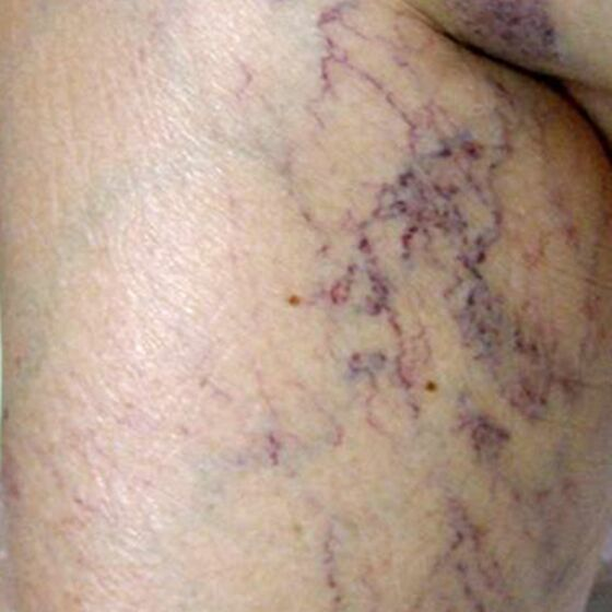 thread vein laser before