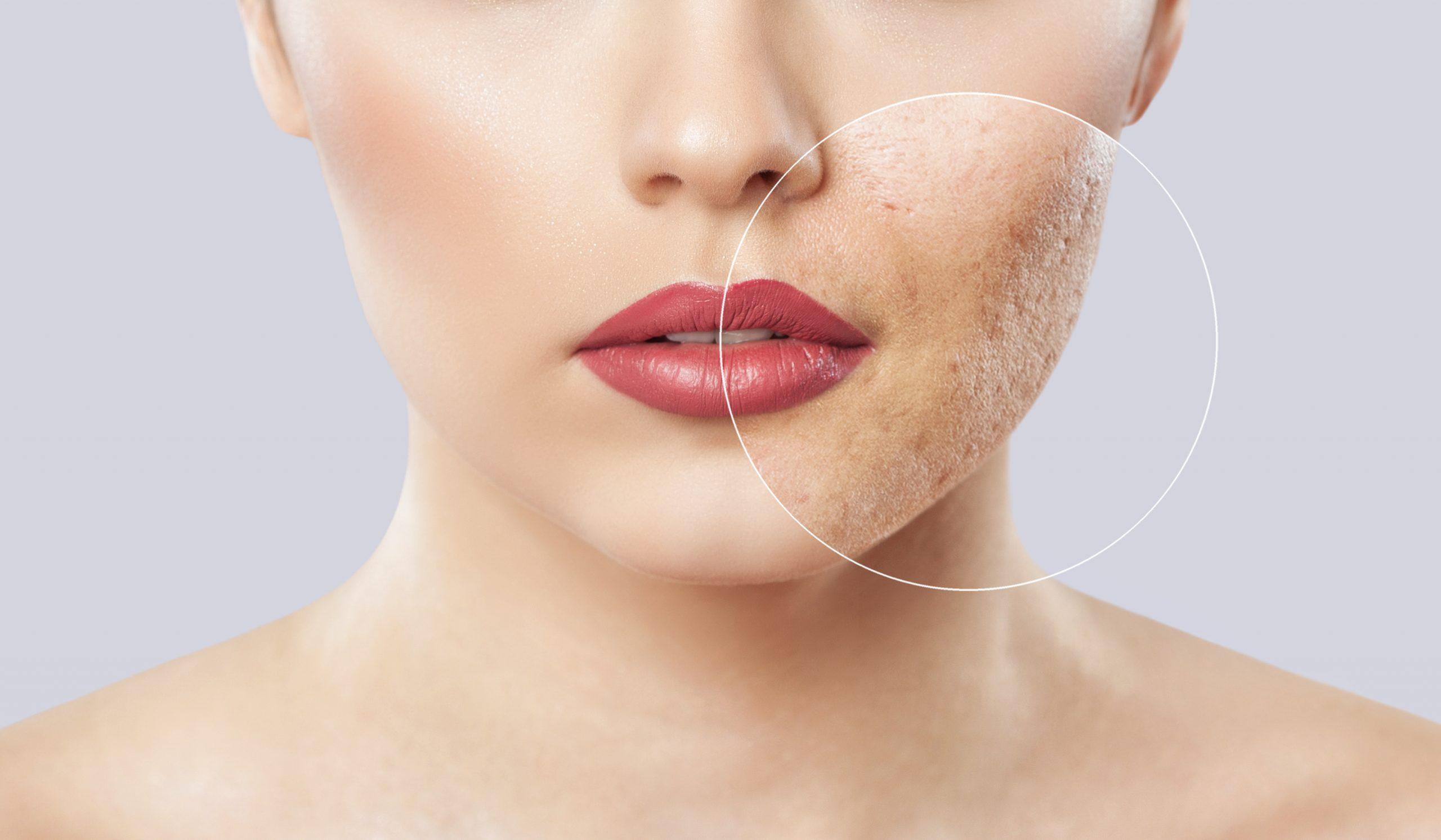 tixel skin resurfacing skin cosmetics london