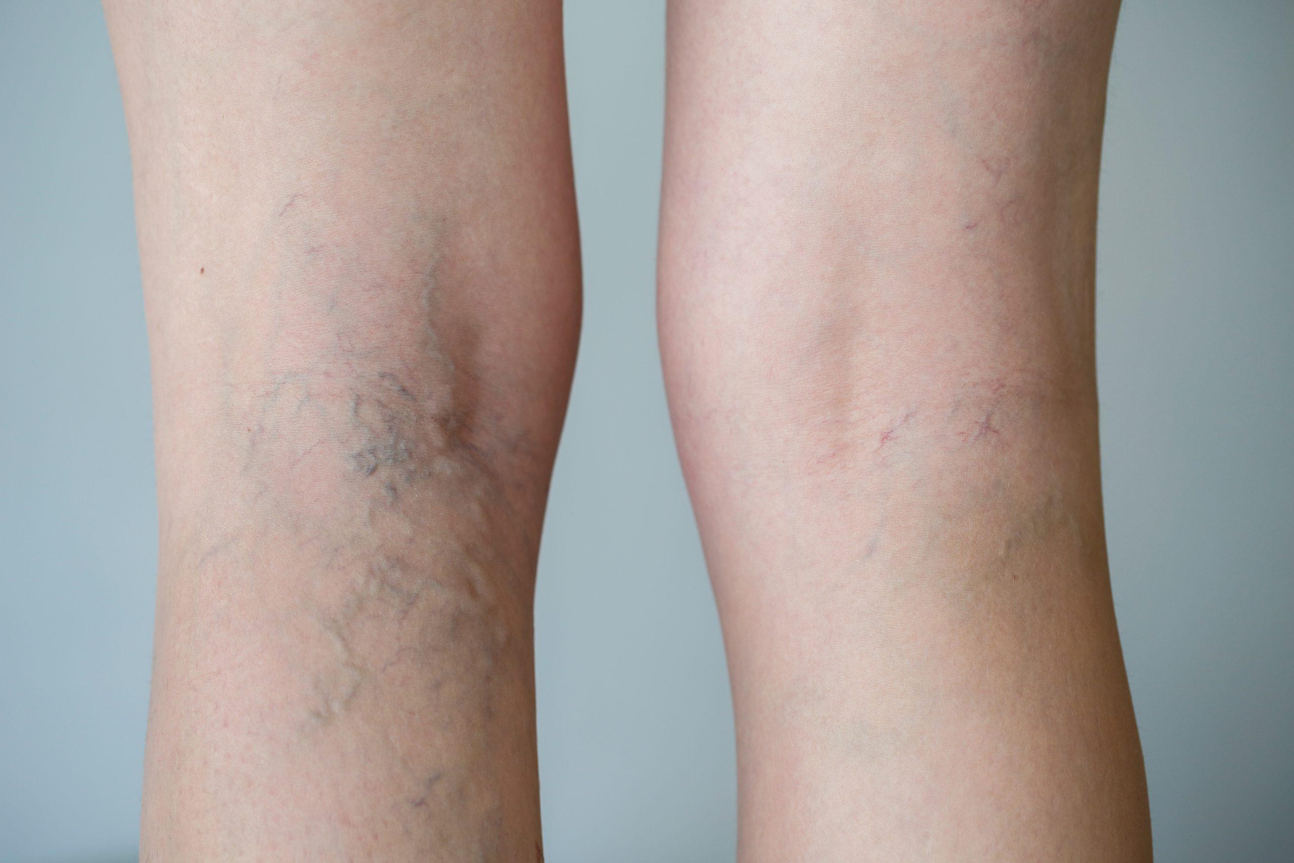 varicose veins skin cosmetics london
