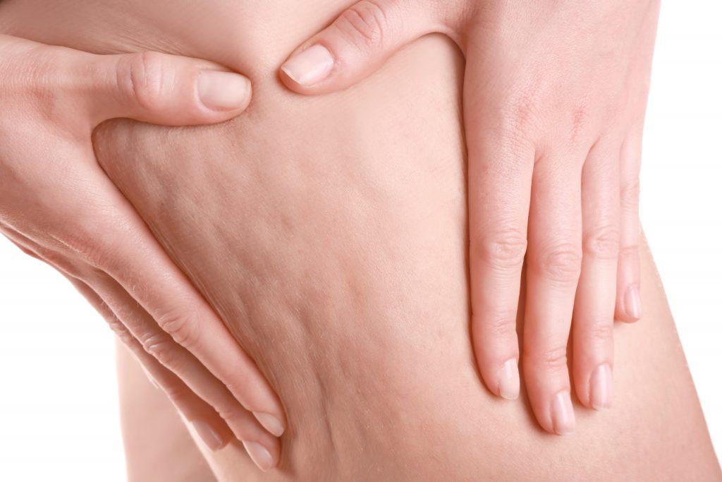 cellulite treatment skin cosmetics london