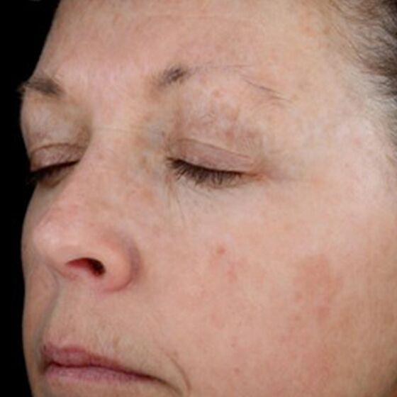 pigmentation after 2