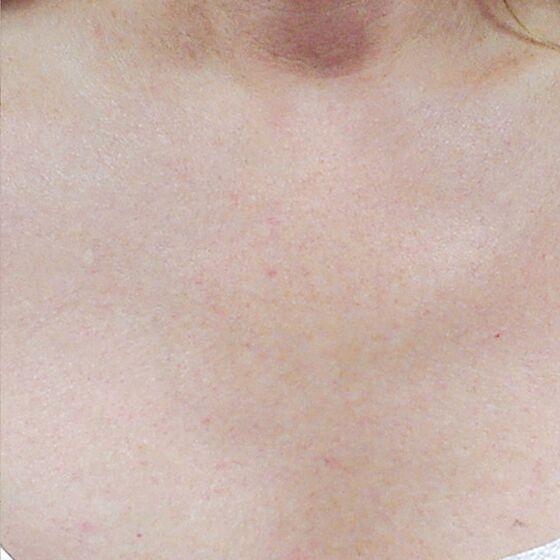 pigmentation after 3