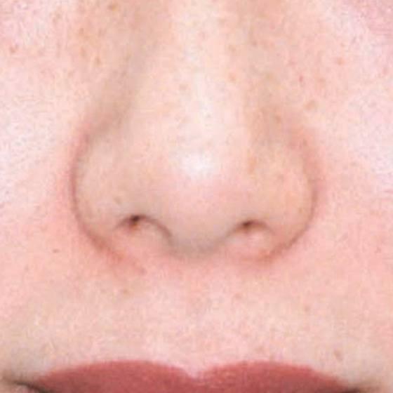 pigmentation after