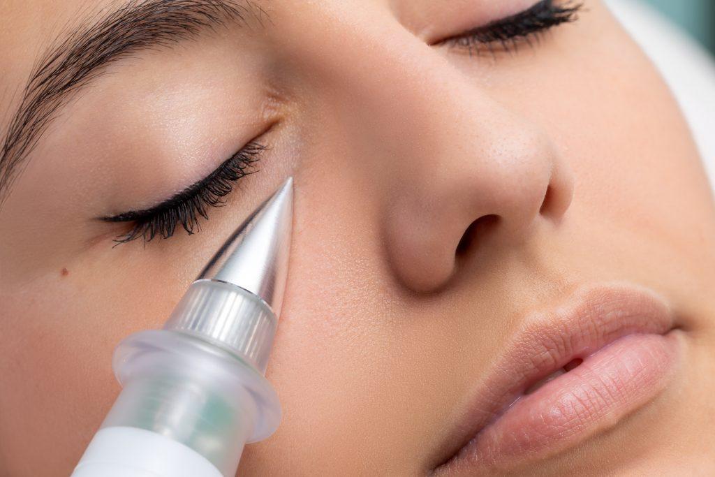 plasma pen skin cosmetics