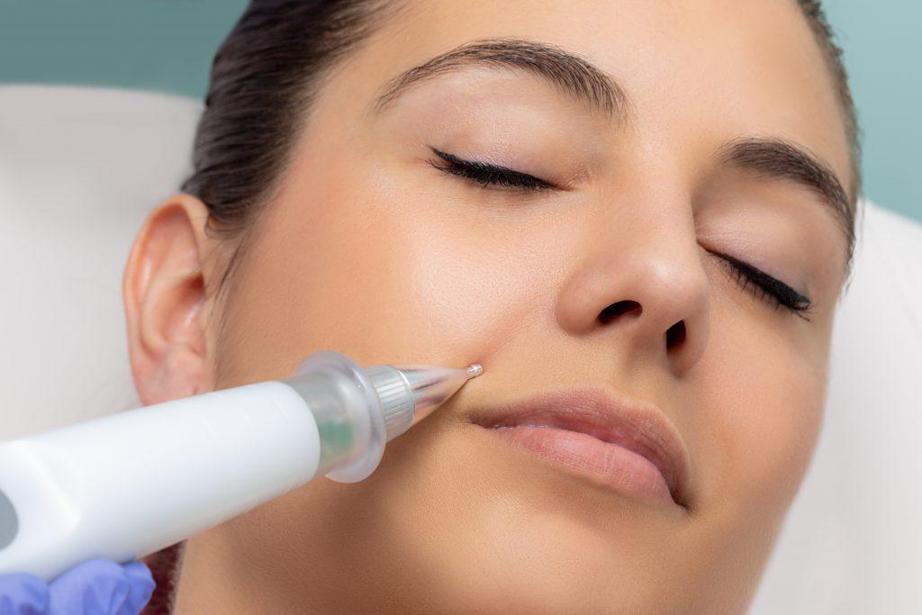 plasma pen skin cosmetics london